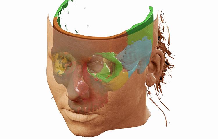 Nasennebenhöhlen- und Schädelbasischirurgie - Titelbild